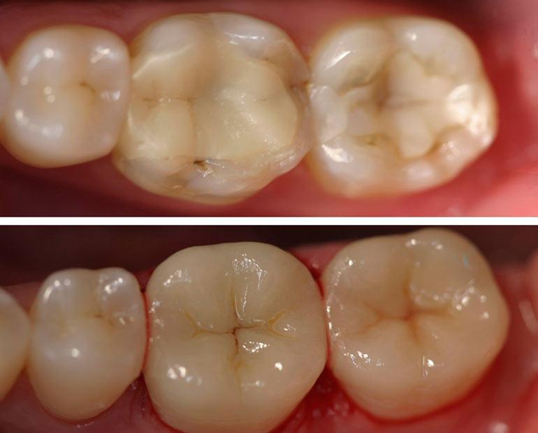 Сколько стоит поставить одну пломбу зуба