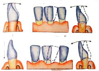 За сколько укрепляется зуб