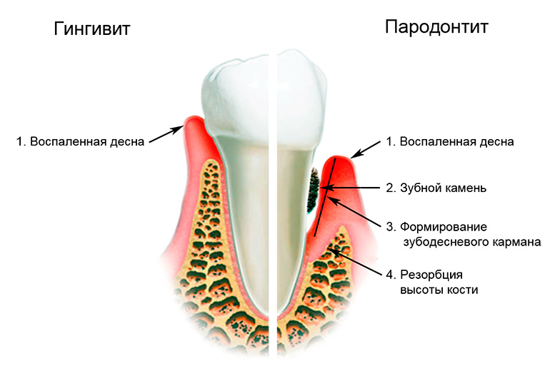 При воспалении в зубе будет температура