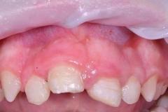 detskaya-stomatologiya-06