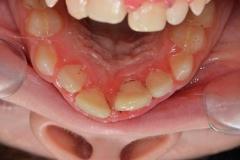 detskaya-stomatologiya-07