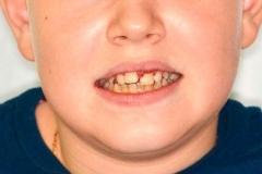 detskaya-stomatologiya-08
