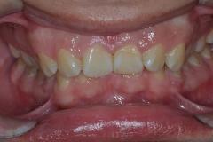 chistka-zubov-01