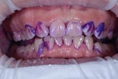 chistka-zubov-06