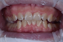 chistka-zubov-09