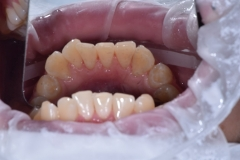 chistka-zubov-10