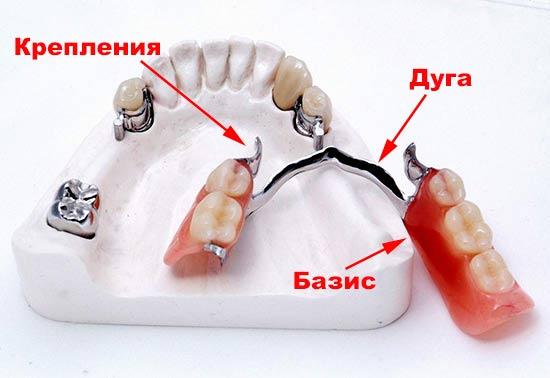 структура бюгельного протеза