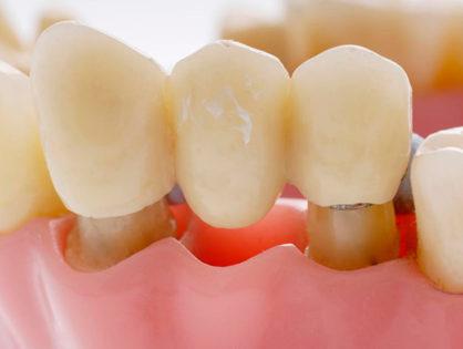 Что такое зубной мост, его виды и стоимость