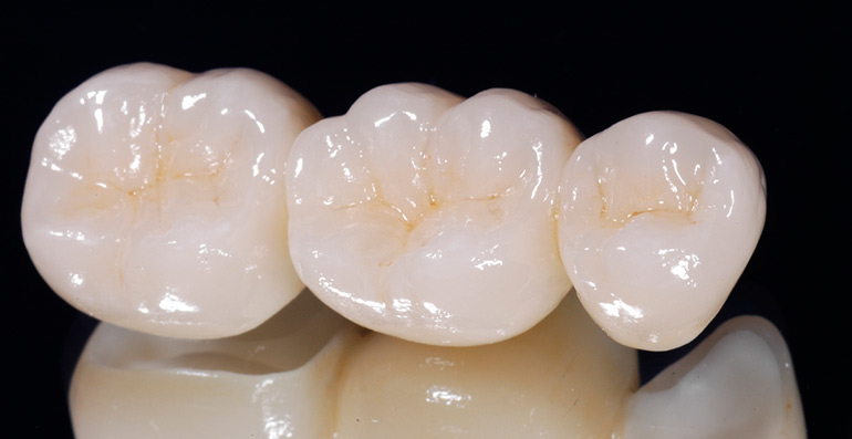 Зубной мост - виды, цена, фото