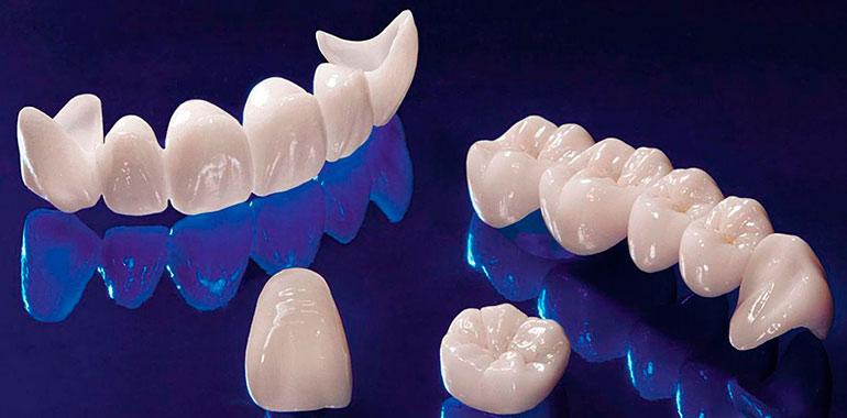 Безметалловая керамика: преимущества протезирования