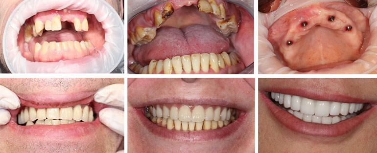 Имплантация зубов фото До и После