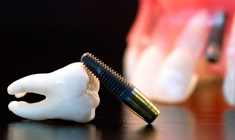 Имплантация зубов в Харькове
