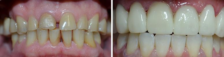 Зубные мосты из металлокерамики стоимость и отзывы