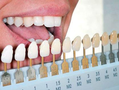 Лазерное отбеливание зубов: цена, отзывы, эффективность методики