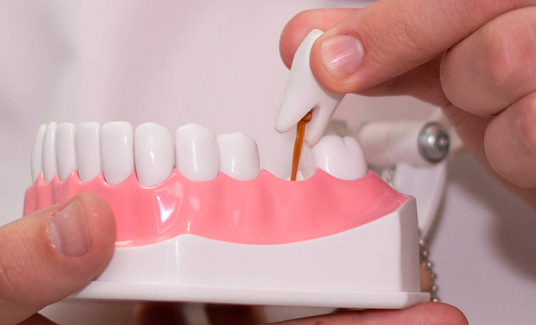Ортопедическая стоматология: историческая справка, задачи и способы ортопедического лечения