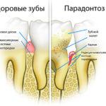 Пародонтоз: лечение и профилактика