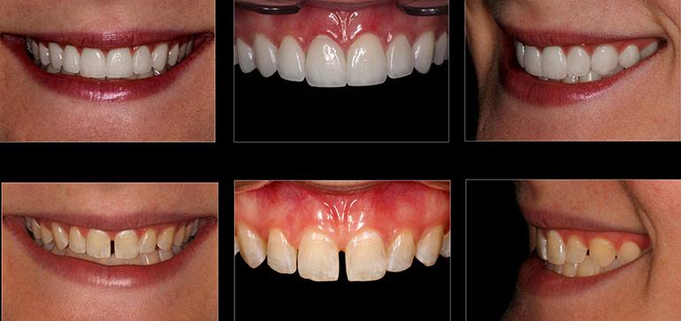 Этапы реставрации на фронтальных зубах