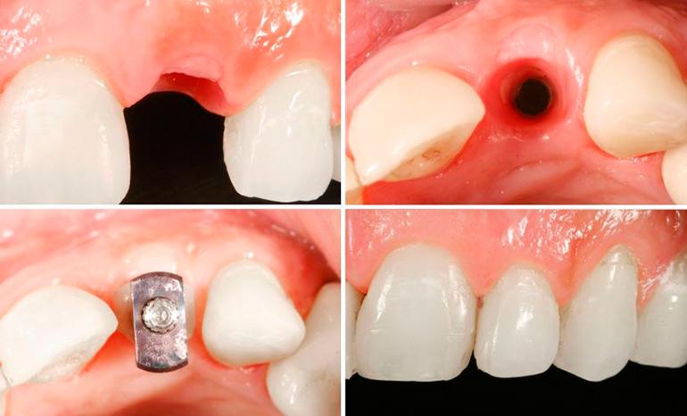 экспресс имплантация зубов - этапы процедуры