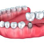 Зубные импланты – какие лучше?