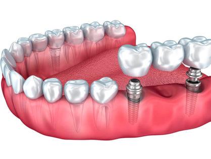 Зубные импланты - какие лучше?