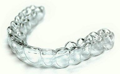 Капы для отбеливания зубов: разновидности, цена