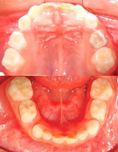 Кариес молочных зубов форум