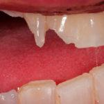 Как следует поступать, если крошатся зубы
