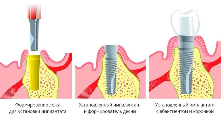 Что такое одноэтапная имплантация зубов