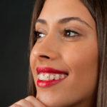 Сапфировые брекеты: особенности, установка, цена