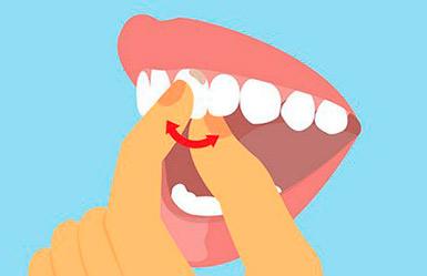 Шатается зуб - что делать, как лечить?