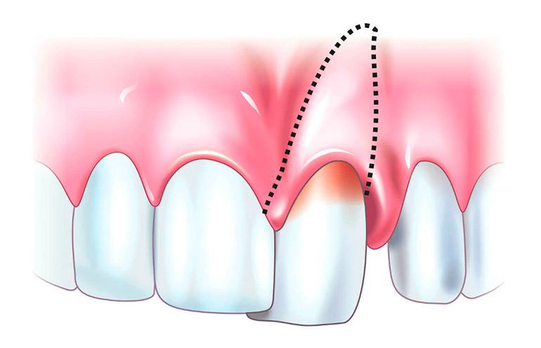 Шатается зуб: причины, лечение, как спасти