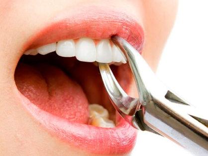 Удаление зуба: способы, осложнения, цена