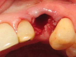 Удаление корня зуба: как удаляют, методы, цена