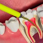 Удаление нерва зуба: как удаляют, методики