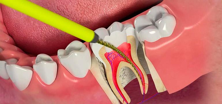 Болит зуб при надкусывании после удаления нерва