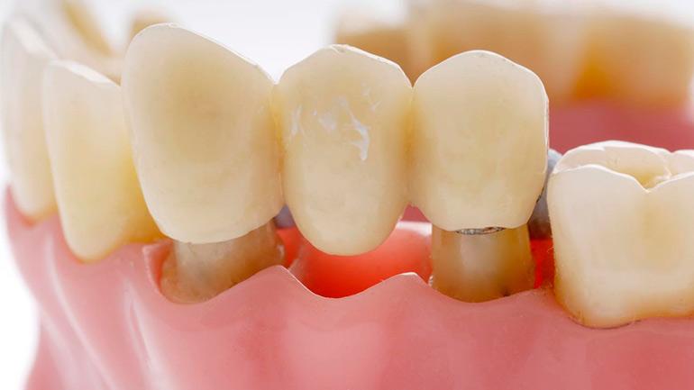 Реферат несъемное протезирование зубов 2002
