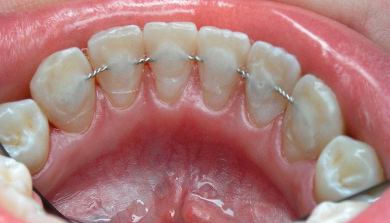 Шинирование зубов при пародонтите проволокой