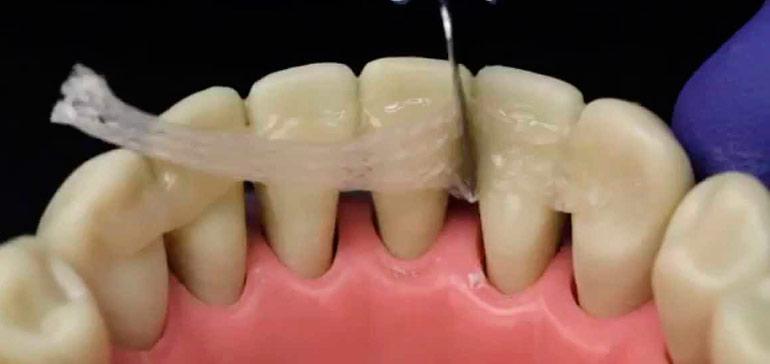 Шинирование — укрепление подвижных зубов