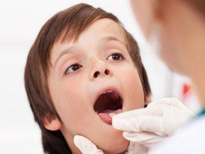 Стоматит у детей: лечение, профилактика, причины