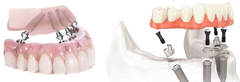 Имплантация зубов all-on-4