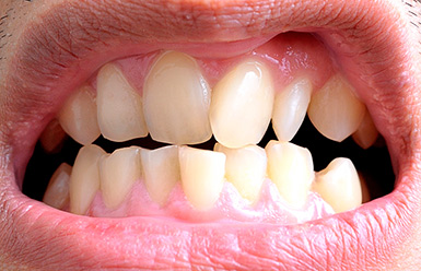 Как исправить кривые зубы у взрослого, без брекетов или виниров возможно ли это