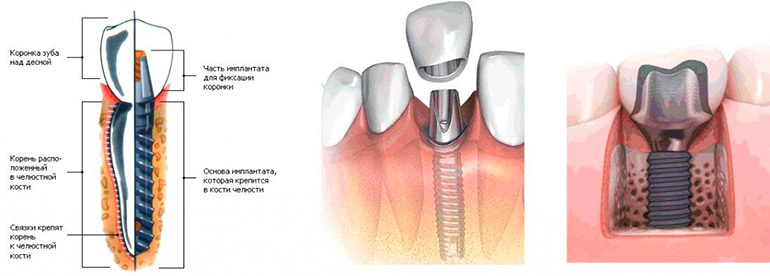 Коронка на имплант