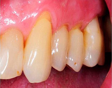 Клиновидный дефект зубов – причины, лечение и цена в стоматологии «Кариесу.нет»