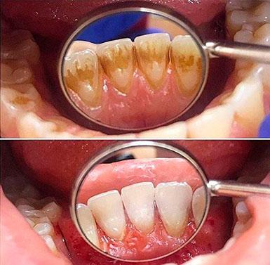 Удаление зубного камня в домашних условиях быстро, народные средства для избавления от зубного камня