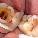 Перфорация зуба